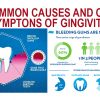 Top Signs of Gingivitis